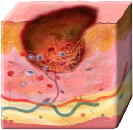 An illustrated cross-section of skin in a dysfunctional wound environment